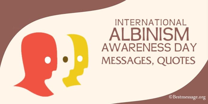 International Albinism Awareness Day Messages, Quotes